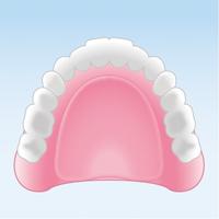 レジン義歯